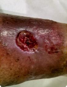Ulcer 1
