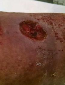 Ulcer 2